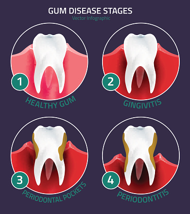 Gum disease treatment at McDonald Dental