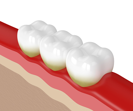 Diagram of 3 teeth with different stages of gum disease at McDonald Dental
