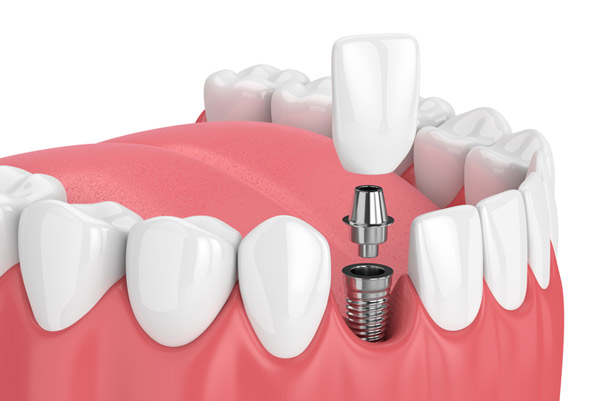 Rendering of a dental implant at McDonald Dental in Houston, TX