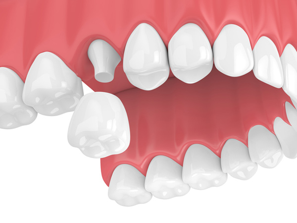 Rendering of a jaw with a porcelain dental crown from McDonald Dental in Houston, TX