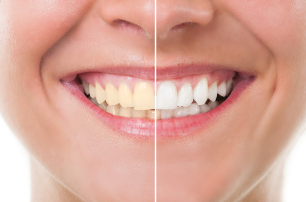Before and after photo of teeth whitening treatment at McDonald Dental in Houston, TX